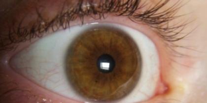 Primo-piano-di-occhio-con-iride-color-nocciol